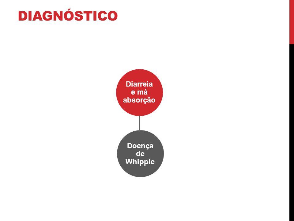 DIAGNÓSTICO Diarreia e má absorção Doença de Whipple