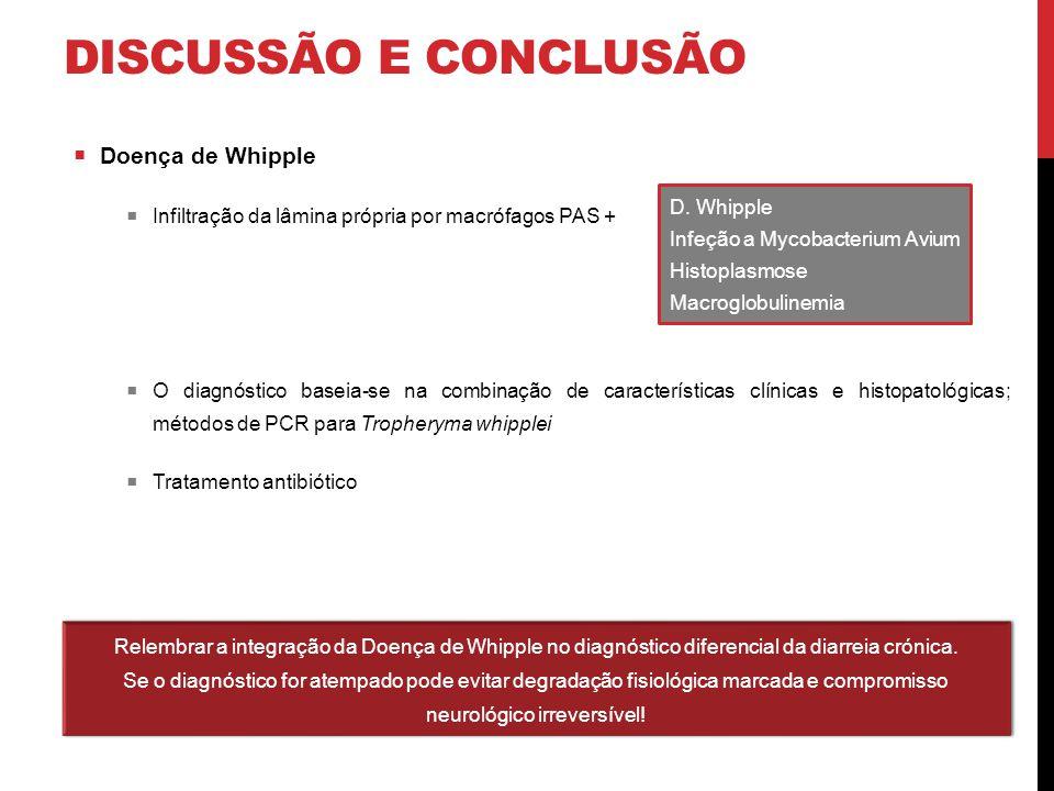 DISCUSSÃO E CONCLUSÃO  Doença de Whipple  Infiltração da lâmina própria por macrófagos PAS +  O diagnóstico baseia-se na combinação de característi