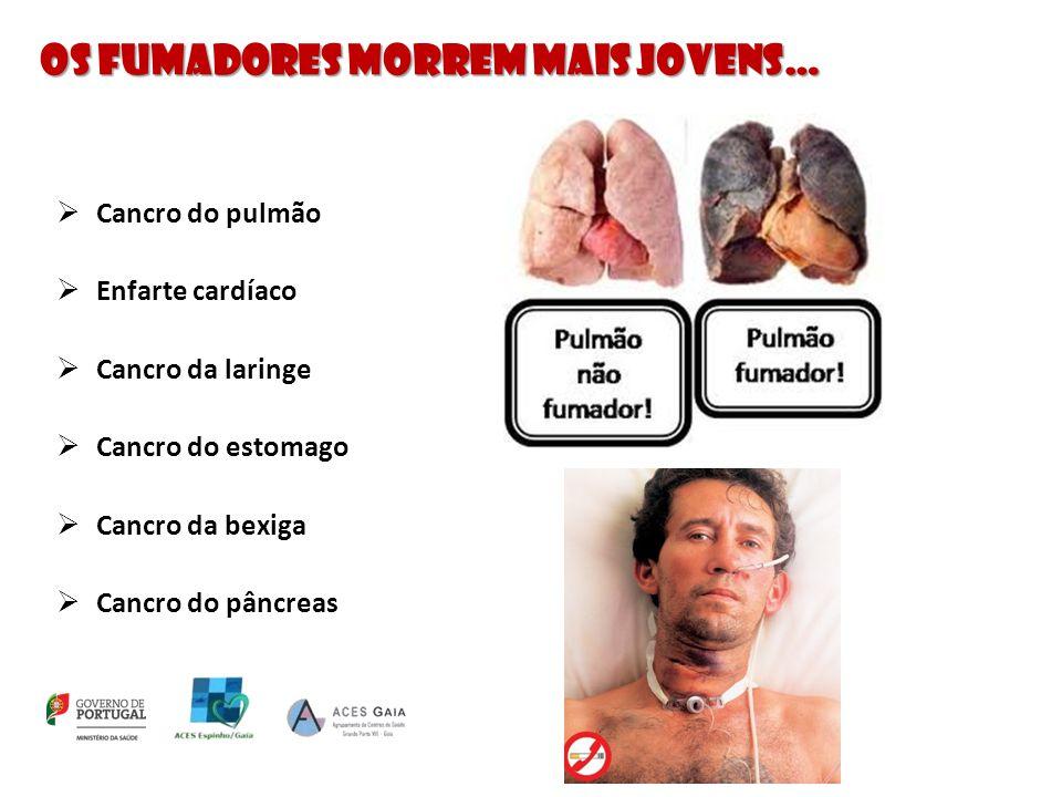 Os fumadores morrem mais jovens…  Cancro do pulmão  Enfarte cardíaco  Cancro da laringe  Cancro do estomago  Cancro da bexiga  Cancro do pâncrea