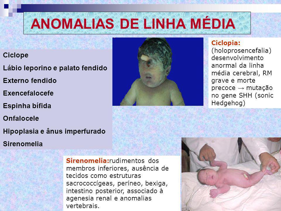 ANOMALIAS DE LINHA MÉDIA Ciclope Lábio leporino e palato fendido Externo fendido Exencefalocefe Espinha bífida Onfalocele Hipoplasia e ânus imperfurad