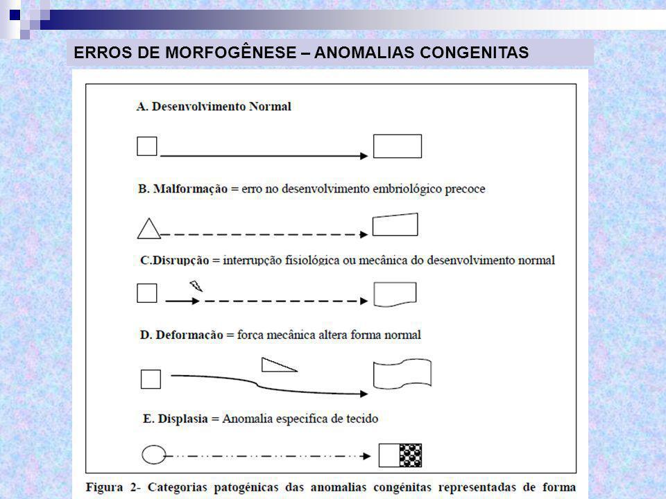 ERROS DE MORFOGÊNESE – ANOMALIAS CONGENITAS