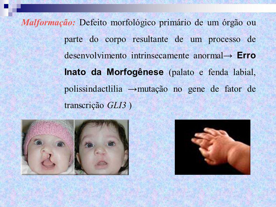 Malformação: Defeito morfológico primário de um órgão ou parte do corpo resultante de um processo de desenvolvimento intrinsecamente anormal → Erro In