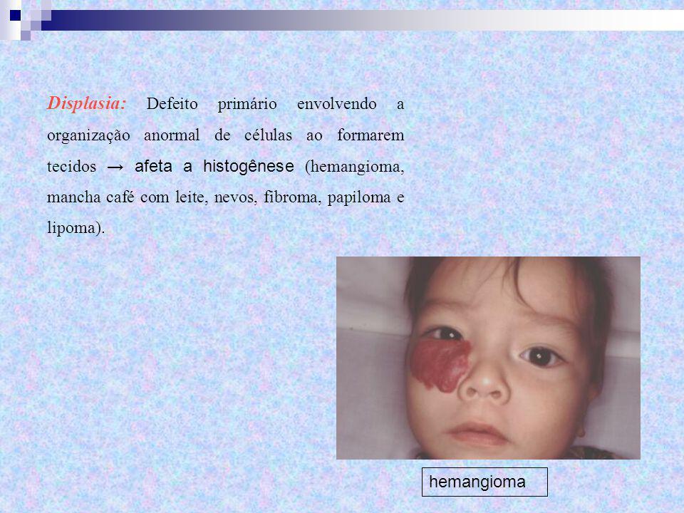 Displasia: Defeito primário envolvendo a organização anormal de células ao formarem tecidos → afeta a histogênese (hemangioma, mancha café com leite,