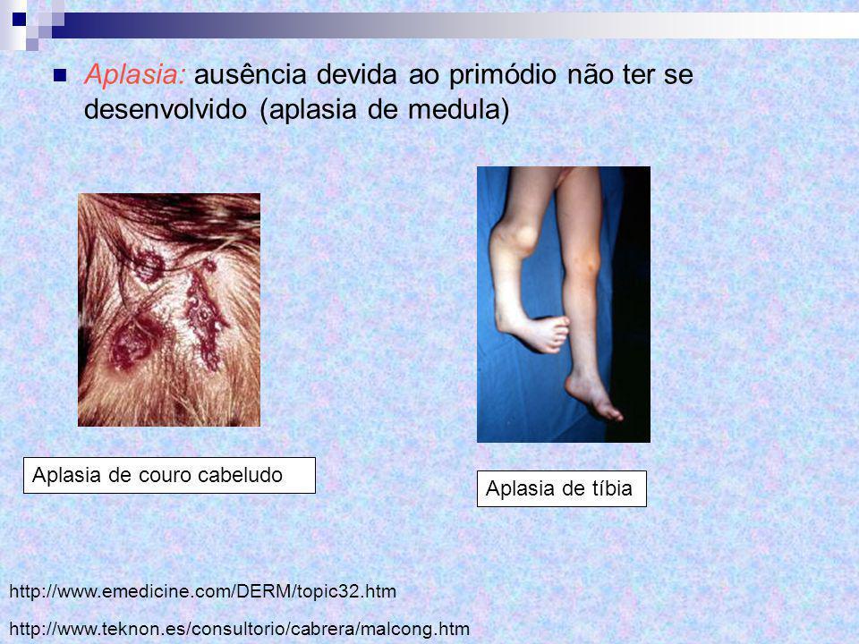 Aplasia: ausência devida ao primódio não ter se desenvolvido (aplasia de medula) http://www.emedicine.com/DERM/topic32.htm Aplasia de couro cabeludo h