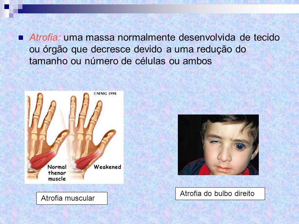 Atrofia: uma massa normalmente desenvolvida de tecido ou órgão que decresce devido a uma redução do tamanho ou número de células ou ambos Atrofia do b