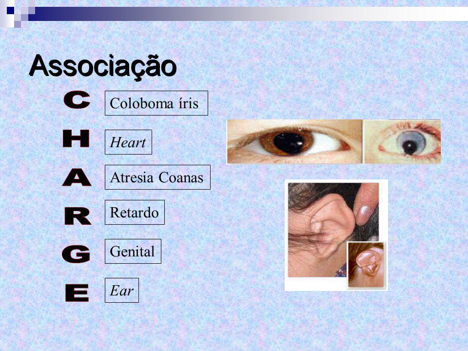 Coloboma íris Heart Atresia Coanas Retardo Genital Ear Associação