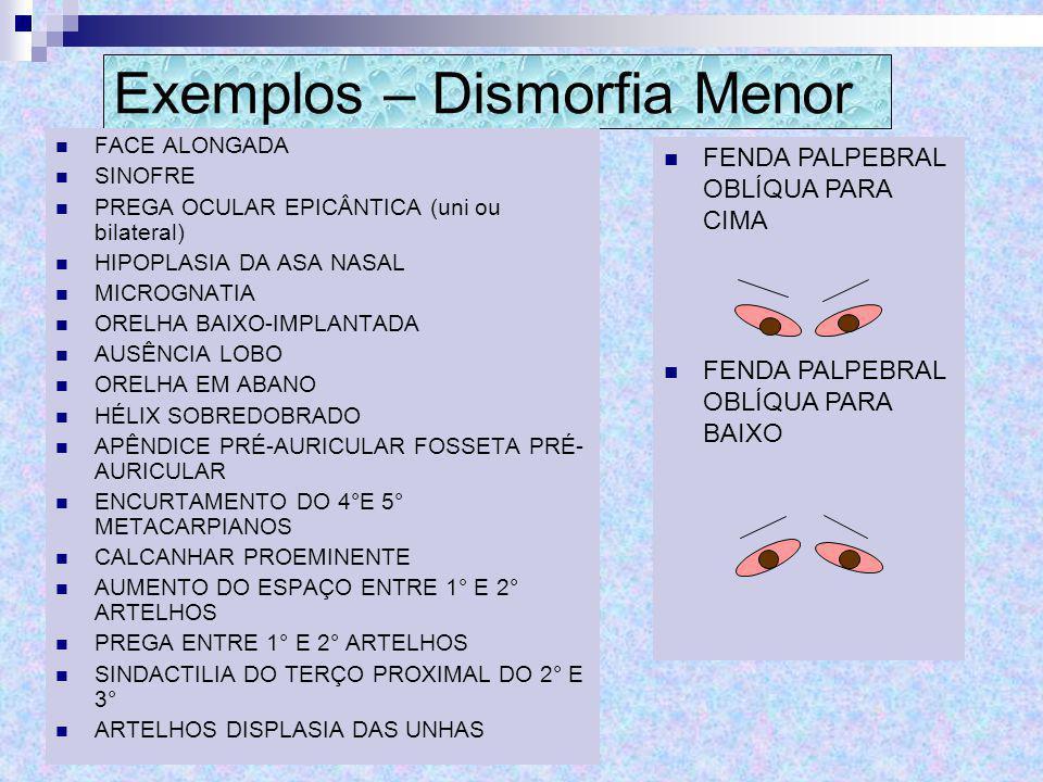 Exemplos – Dismorfia Menor FACE ALONGADA SINOFRE PREGA OCULAR EPICÂNTICA (uni ou bilateral) HIPOPLASIA DA ASA NASAL MICROGNATIA ORELHA BAIXO-IMPLANTAD