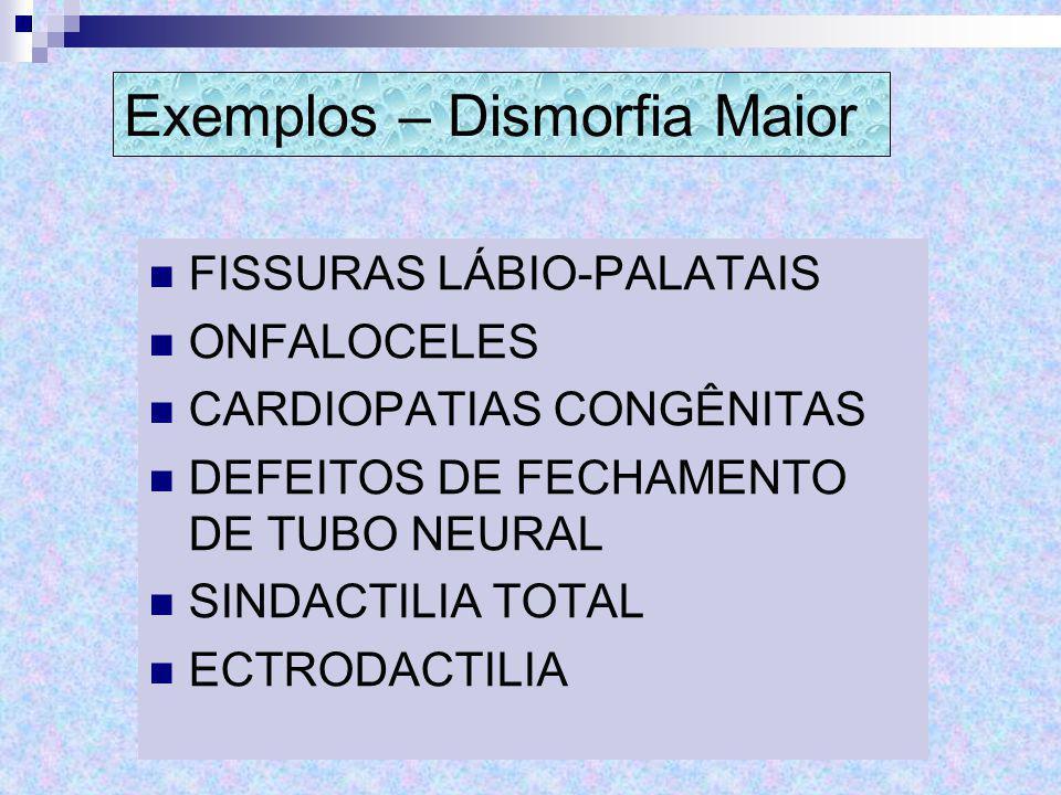Exemplos – Dismorfia Maior FISSURAS LÁBIO-PALATAIS ONFALOCELES CARDIOPATIAS CONGÊNITAS DEFEITOS DE FECHAMENTO DE TUBO NEURAL SINDACTILIA TOTAL ECTRODA