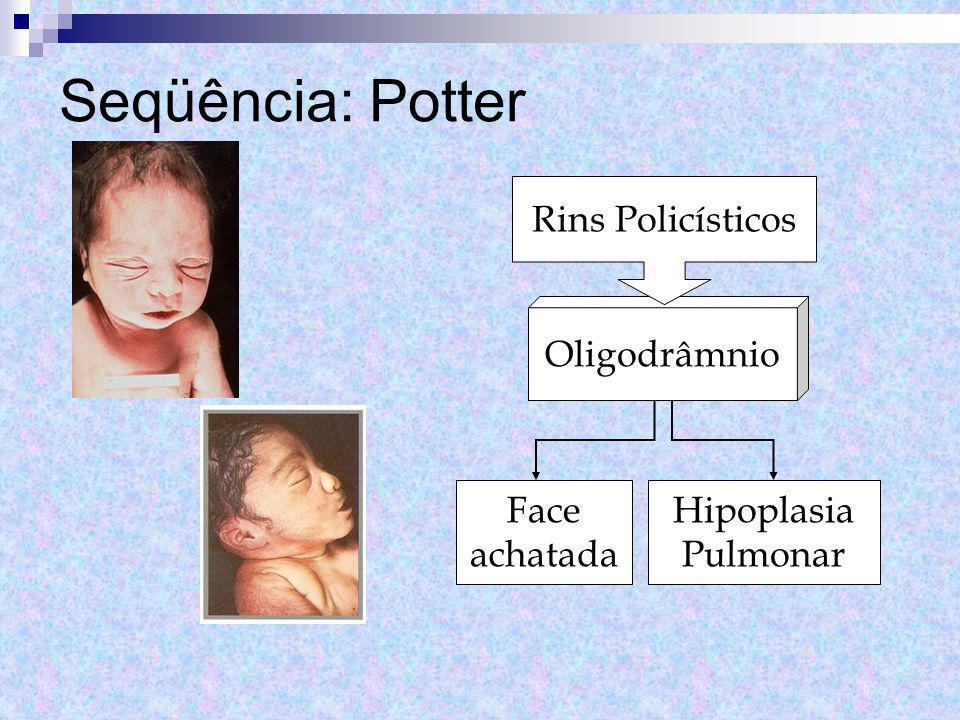 Seqüência: Potter Oligodrâmnio Rins Policísticos Face achatada Hipoplasia Pulmonar