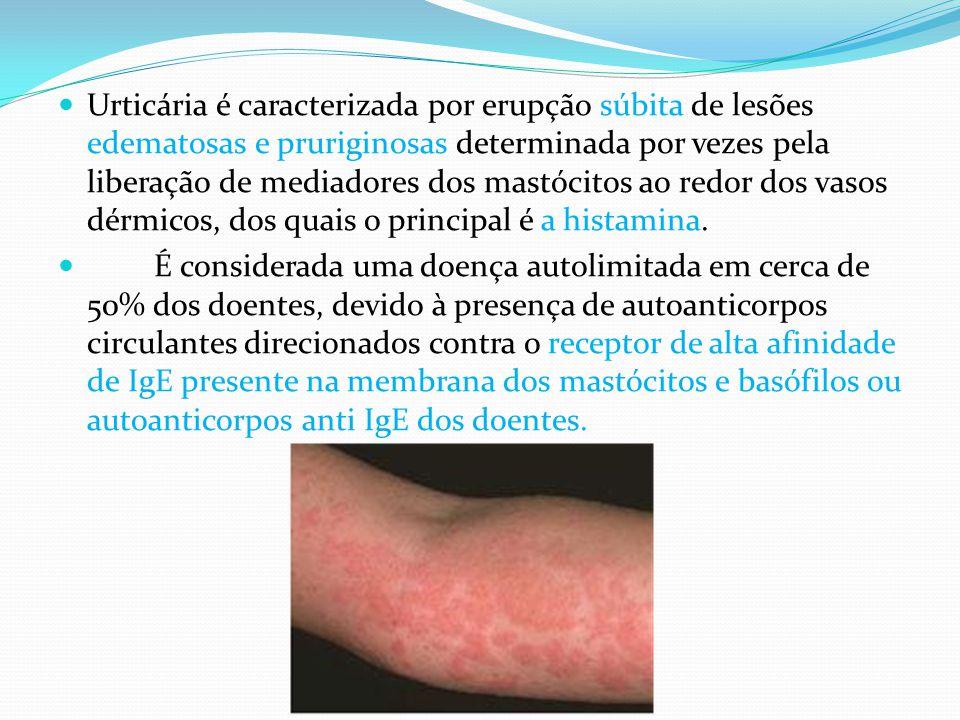 Urticária é caracterizada por erupção súbita de lesões edematosas e pruriginosas determinada por vezes pela liberação de mediadores dos mastócitos ao