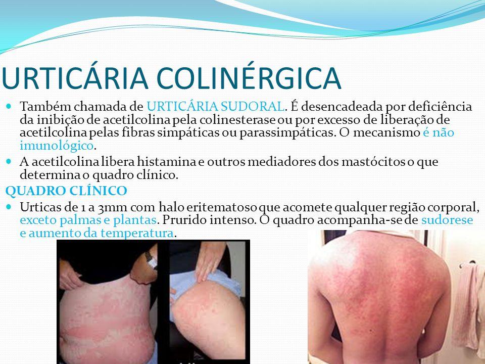 URTICÁRIA COLINÉRGICA Também chamada de URTICÁRIA SUDORAL. É desencadeada por deficiência da inibição de acetilcolina pela colinesterase ou por excess