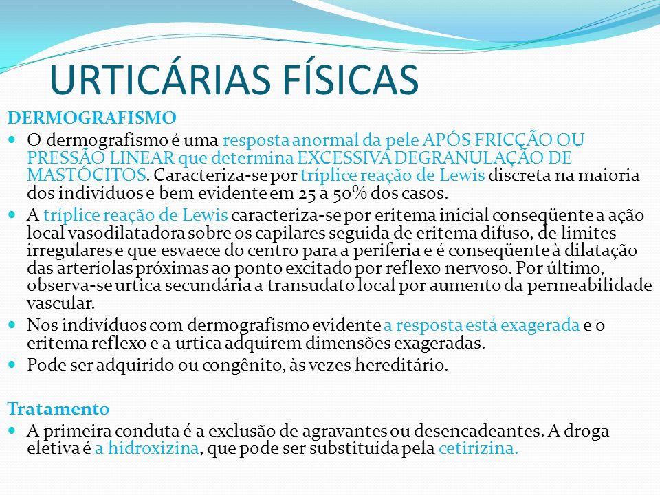 URTICÁRIAS FÍSICAS DERMOGRAFISMO O dermografismo é uma resposta anormal da pele APÓS FRICÇÃO OU PRESSÃO LINEAR que determina EXCESSIVA DEGRANULAÇÃO DE