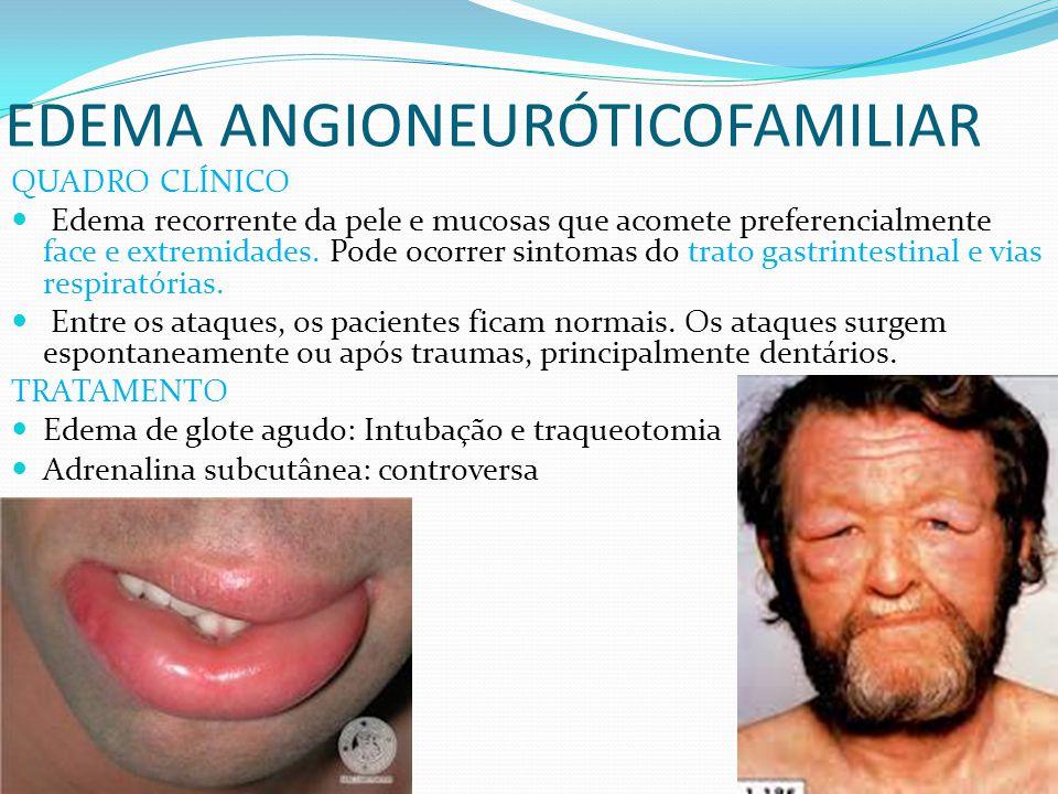 EDEMA ANGIONEURÓTICOFAMILIAR QUADRO CLÍNICO Edema recorrente da pele e mucosas que acomete preferencialmente face e extremidades. Pode ocorrer sintoma