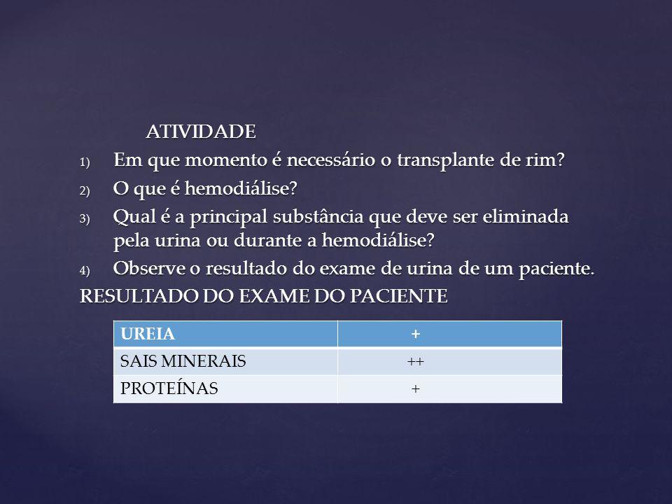 ATIVIDADE 1) Em que momento é necessário o transplante de rim? 2) O que é hemodiálise? 3) Qual é a principal substância que deve ser eliminada pela ur
