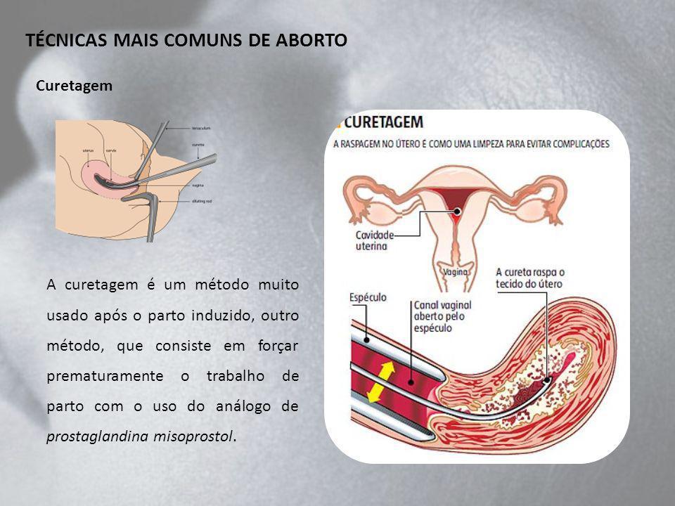 A curetagem é um método muito usado após o parto induzido, outro método, que consiste em forçar prematuramente o trabalho de parto com o uso do análogo de prostaglandina misoprostol.