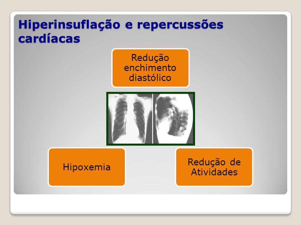 Hiperinsuflação e repercussões cardíacas Redução enchimento diastólico Redução de Atividades Hipoxemia