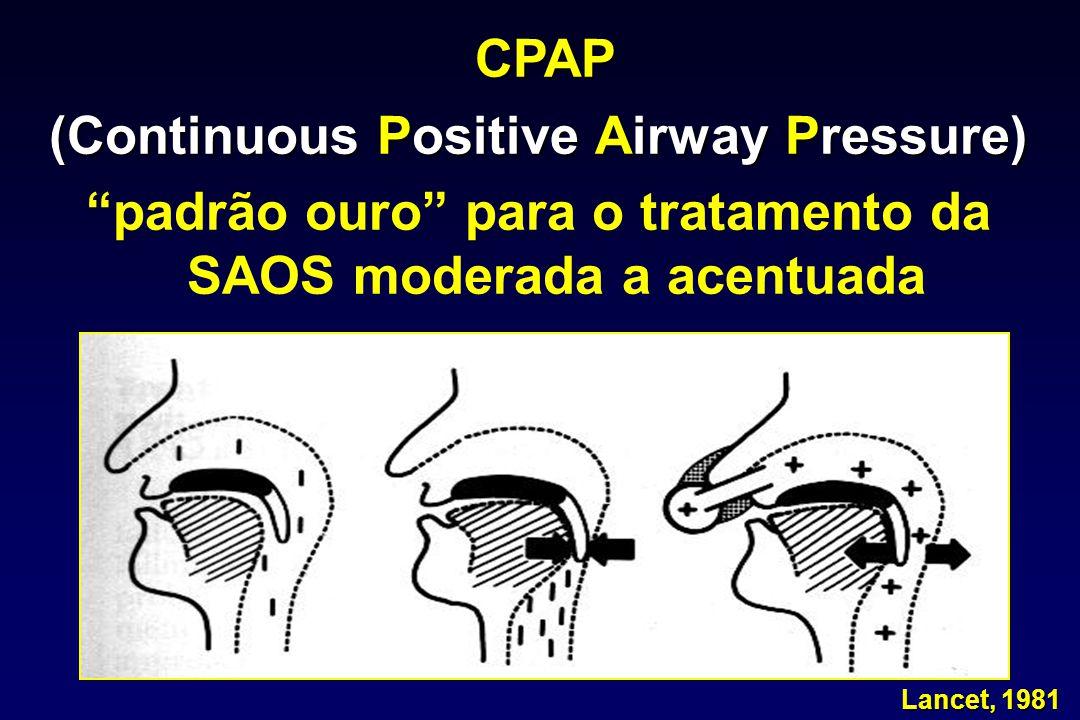 """CPAP (Continuous Positive Airway Pressure) """"padrão ouro"""" para o tratamento da SAOS moderada a acentuada Lancet, 1981 Lancet, 1981"""