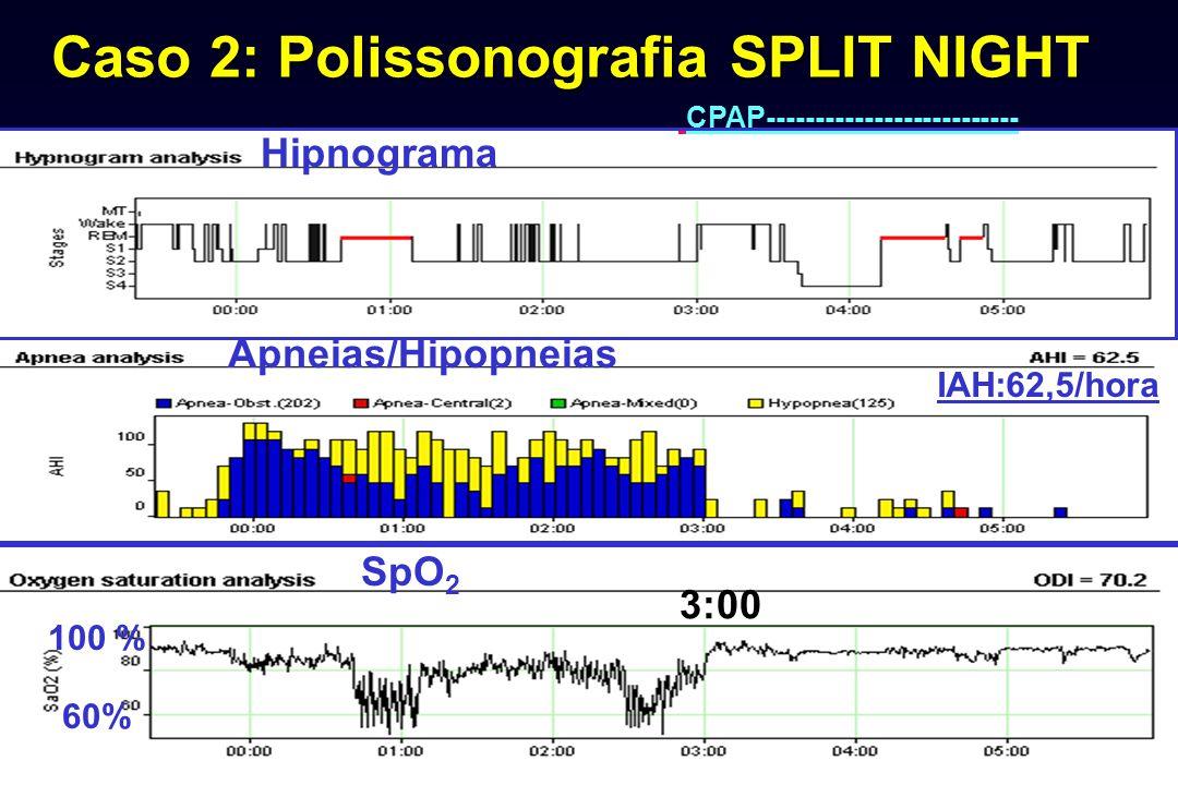 Caso 2: Polissonografia SPLIT NIGHT CPAP-------------------------- 100 % 60% SpO 2 Hipnograma Apneias/Hipopneias IAH:62,5/hora 3:00