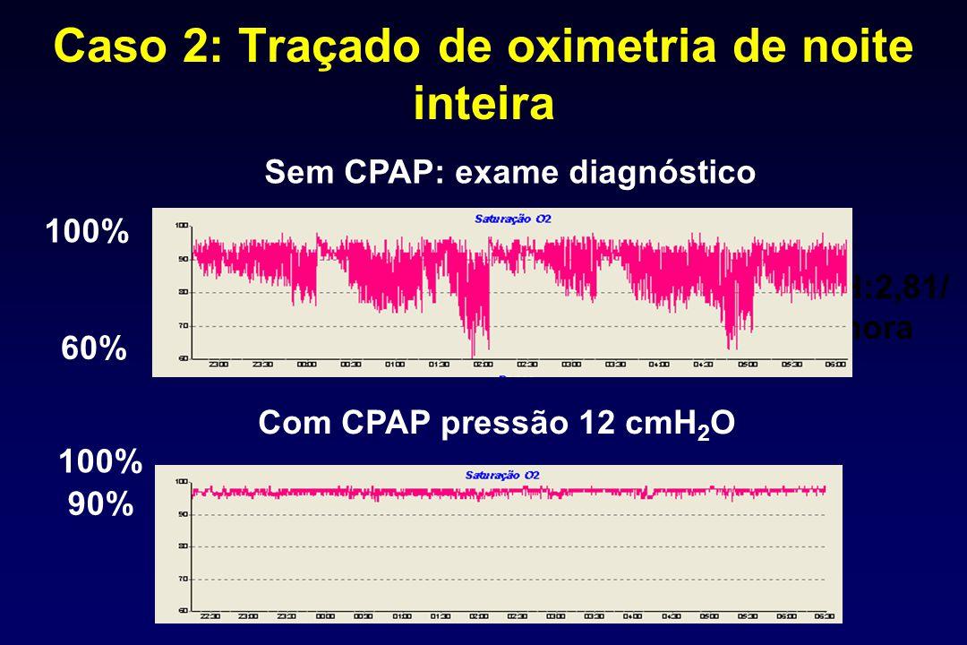 Caso 2: Traçado de oximetria de noite inteira IAH:2,81/ hora Com CPAP pressão 12 cmH 2 O Sem CPAP: exame diagnóstico 100% 60% 90%