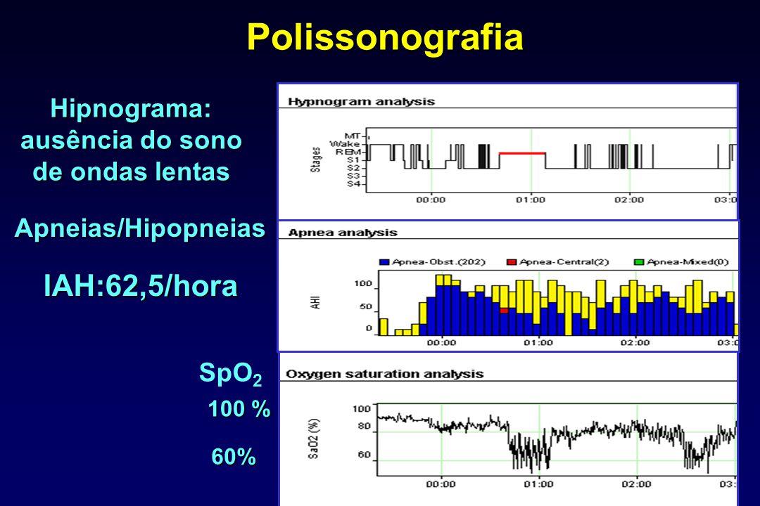 Polissonografia 100 % 60% Hipnograma: ausência do sono de ondas lentas Apneias/Hipopneias IAH:62,5/hora SpO 2