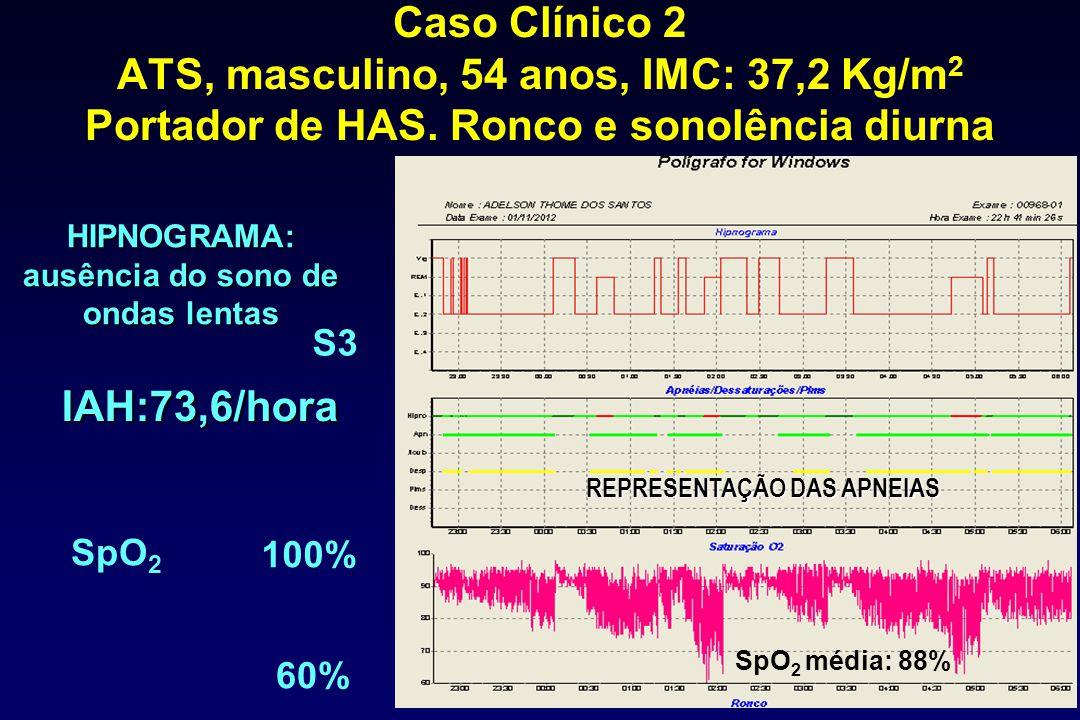 Caso Clínico 2 ATS, masculino, 54 anos, IMC: 37,2 Kg/m 2 Portador de HAS. Ronco e sonolência diurna HIPNOGRAMA: ausência do sono de ondas lentas IAH:7