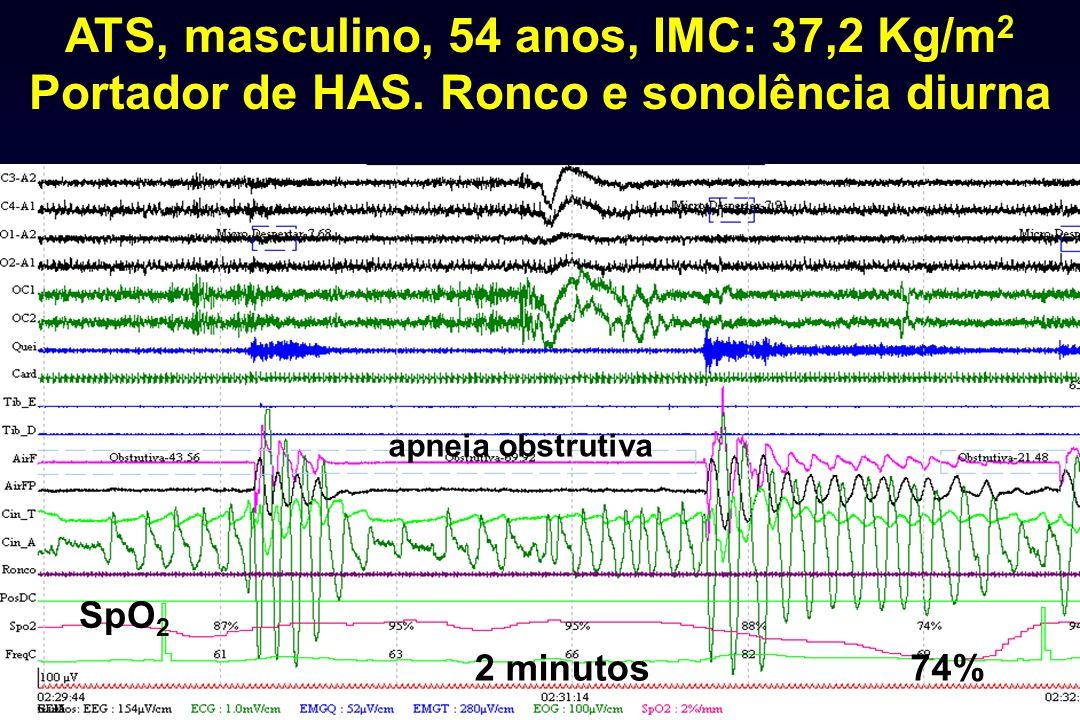 2 minutos ATS, masculino, 54 anos, IMC: 37,2 Kg/m 2 Portador de HAS. Ronco e sonolência diurna 74% SpO 2 apneia obstrutiva