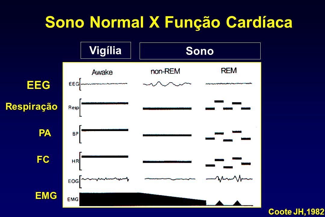 Sono Normal X Função Cardíaca Coote JH,1982 Respiração PA FC EMG Vigília Sono EEG