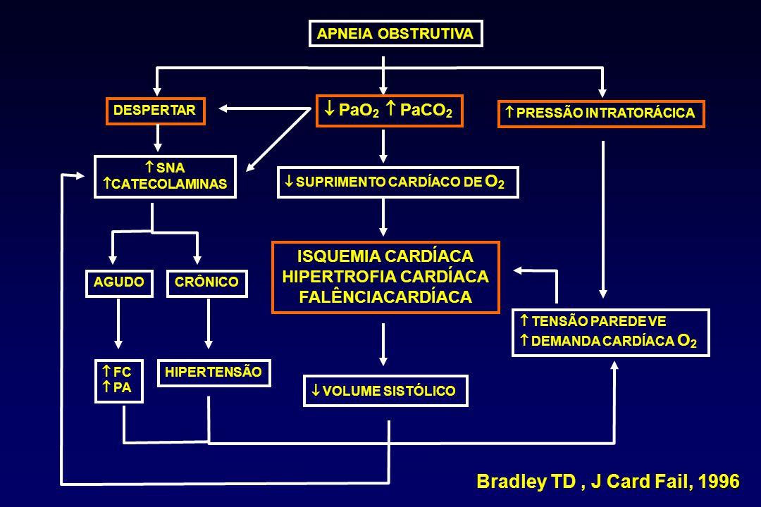 Apneia Obstrutiva do Sono Hipóxia Intermitente Fragmentação do Sono Excitação Simpática Desregulação Metabólica: Resistência insulina Dislipidemia Inflamação Sistêmica Estresse Oxidativo Disfunção Endotelial Doença Cardiovascular e Aterosclerose: Hipertensão (sistêmica/pulmonar) Doença Arterial Coronária Doença Cérebrovascular Insuficiência Cardíaca Congestiva Arritmias McNicholas WT, AJRCCM, 2009
