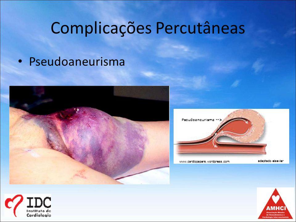 Complicações Percutâneas Pseudoaneurisma