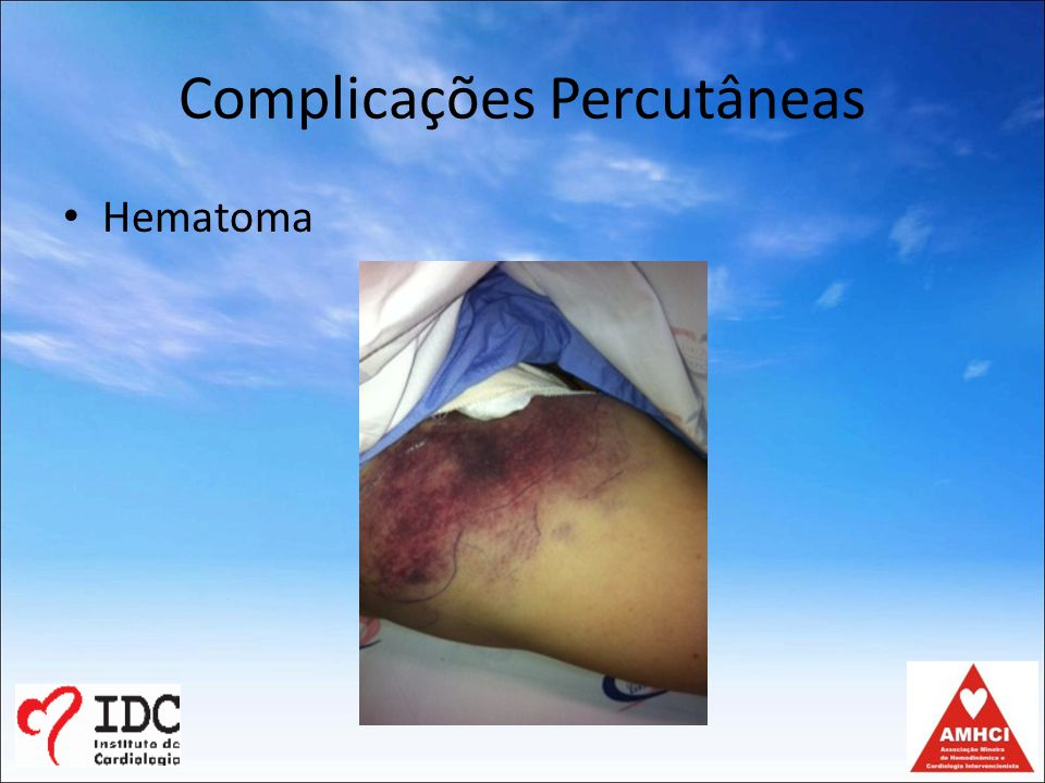 Complicações Percutâneas Hematoma