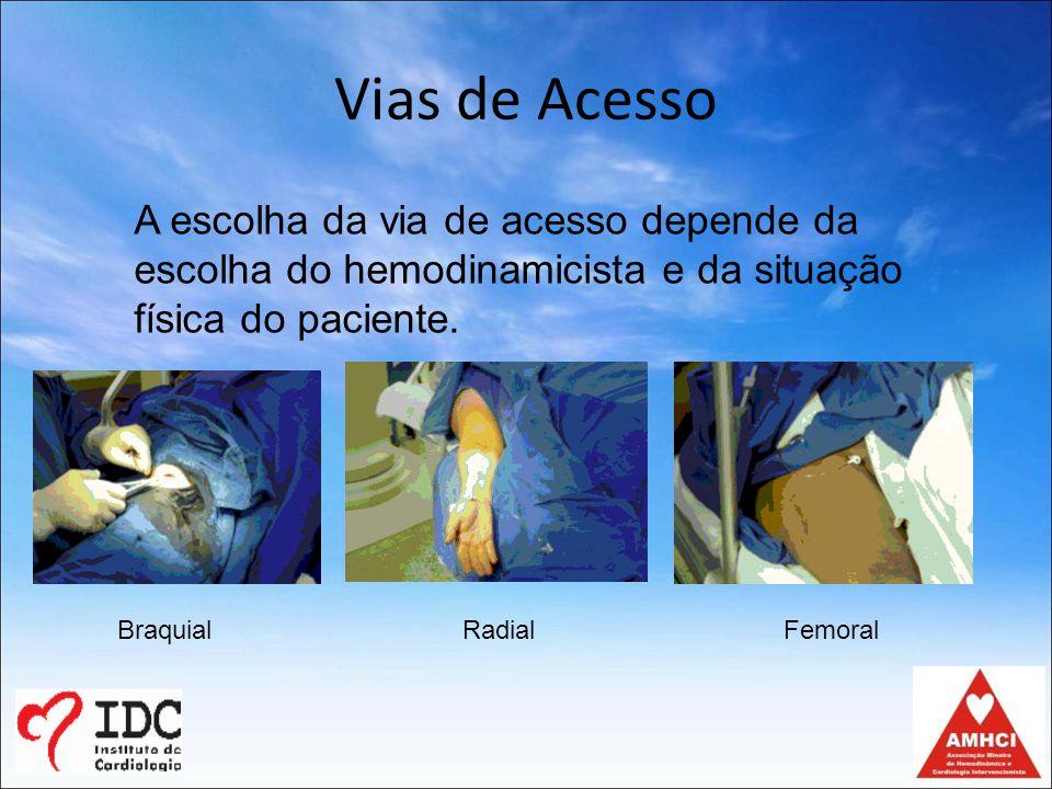 Vias de Acesso A escolha da via de acesso depende da escolha do hemodinamicista e da situação física do paciente.