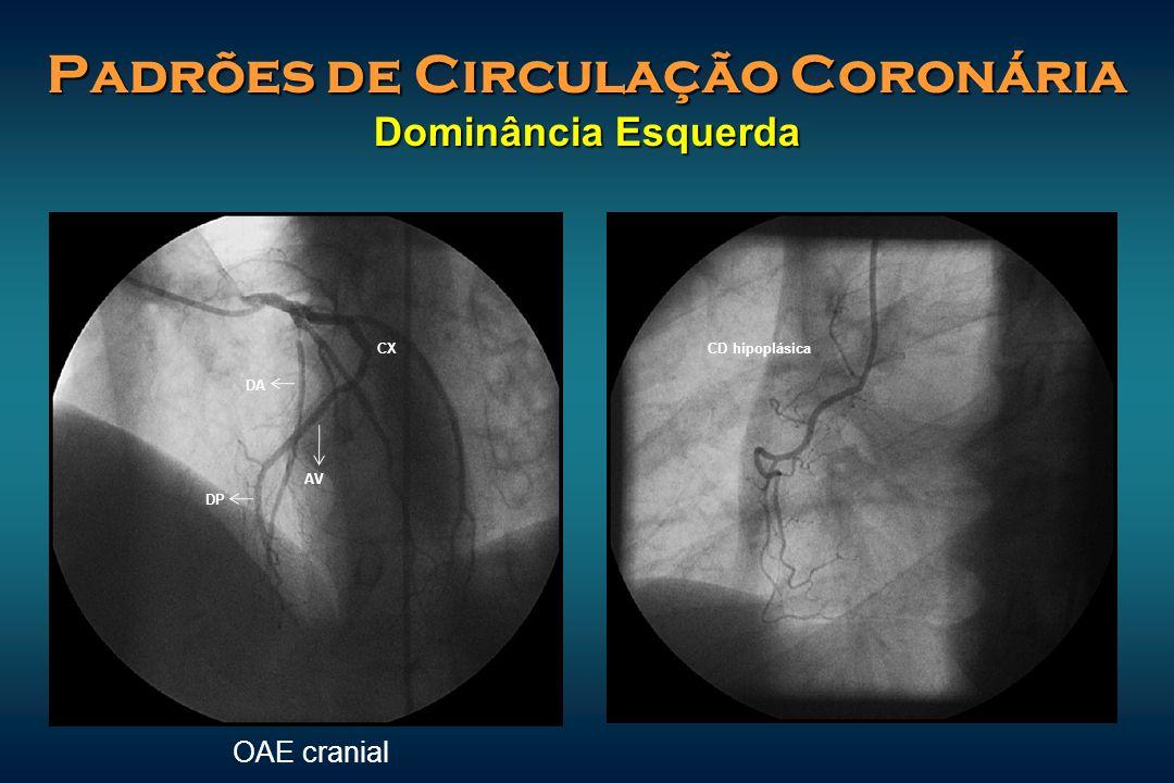 Padrões de Circulação Coronária Dominância Esquerda CD hipoplásica DA DP CX AV OAE cranial