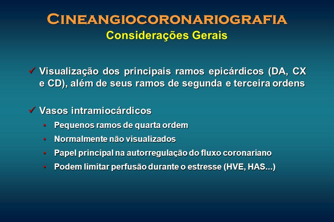 Cineangiocoronariografia Considerações Gerais Visualização dos principais ramos epicárdicos (DA, CX e CD), além de seus ramos de segunda e terceira or