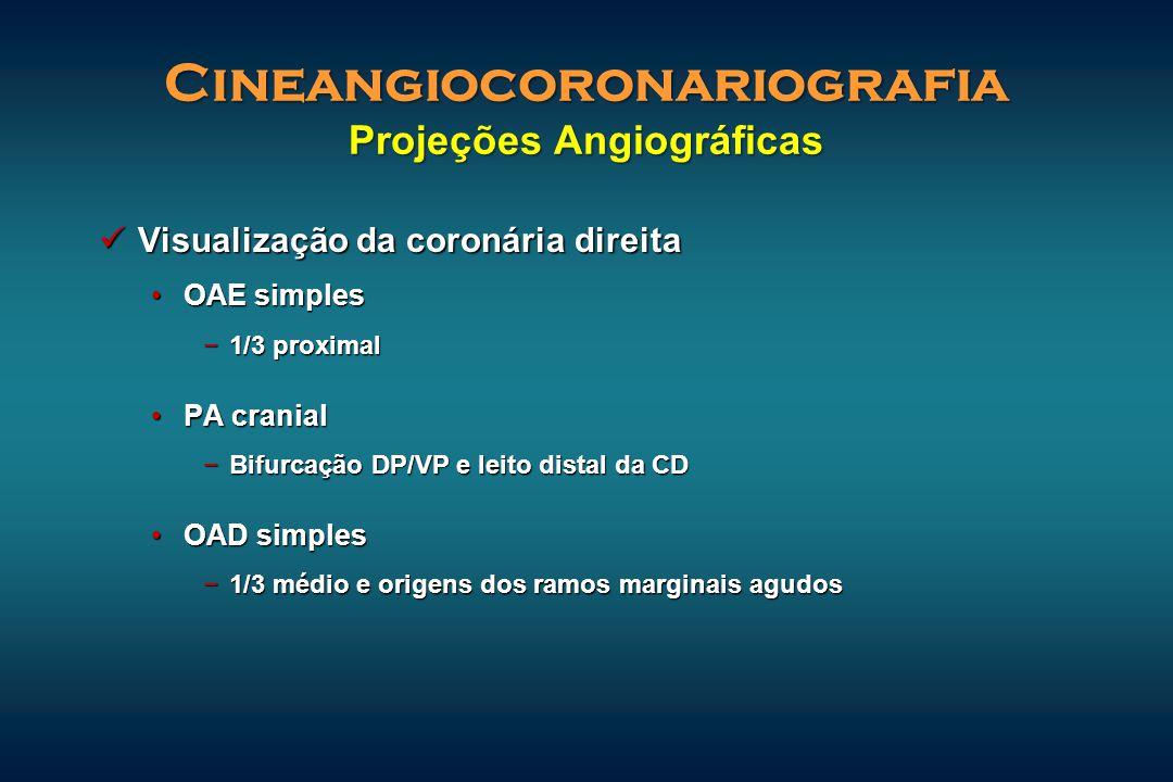 Visualização da coronária direita Visualização da coronária direita OAE simplesOAE simples −1/3 proximal PA cranialPA cranial −Bifurcação DP/VP e leit
