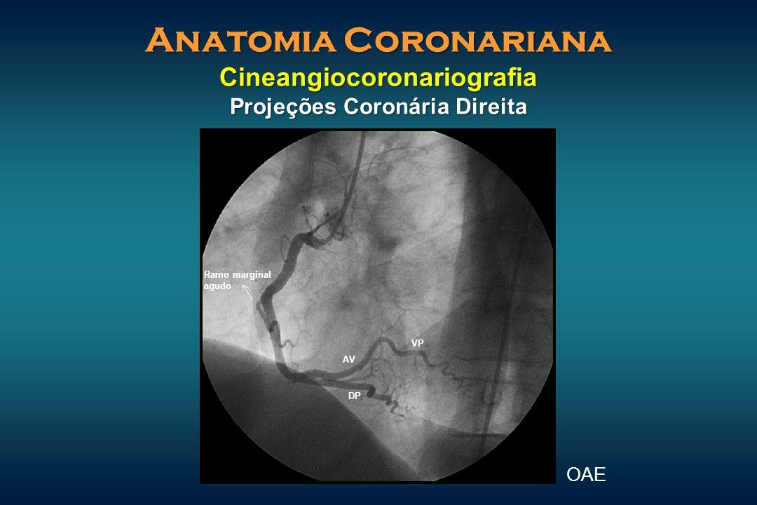 Anatomia Coronariana Cineangiocoronariografia Projeções Coronária Direita OAE VP DP AV Ramo marginal agudo