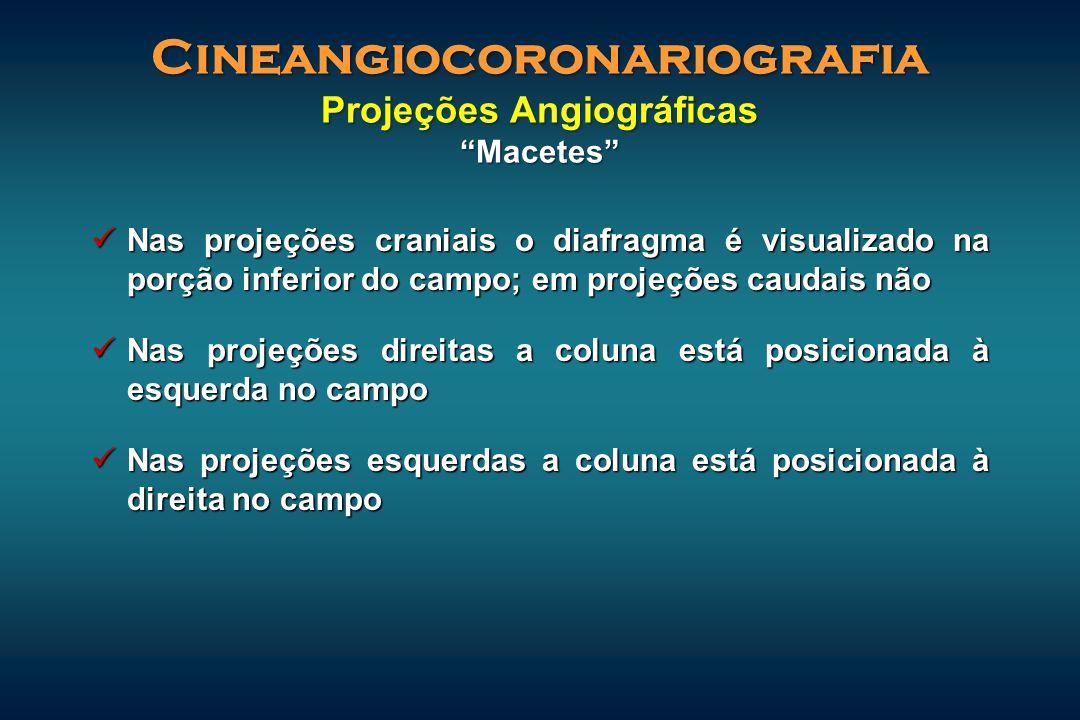 Nas projeções craniais o diafragma é visualizado na porção inferior do campo; em projeções caudais não Nas projeções craniais o diafragma é visualizad