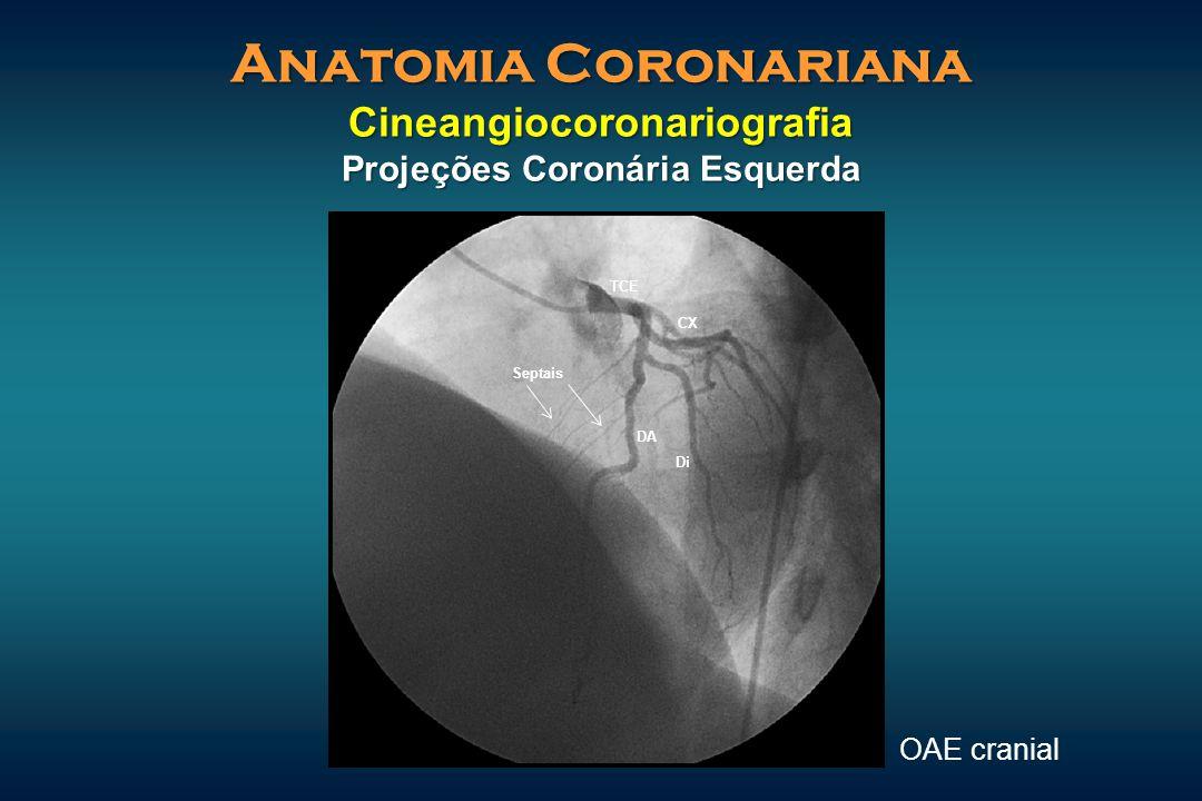 Anatomia Coronariana Cineangiocoronariografia Projeções Coronária Esquerda OAE cranial Septais Di DA CX TCE