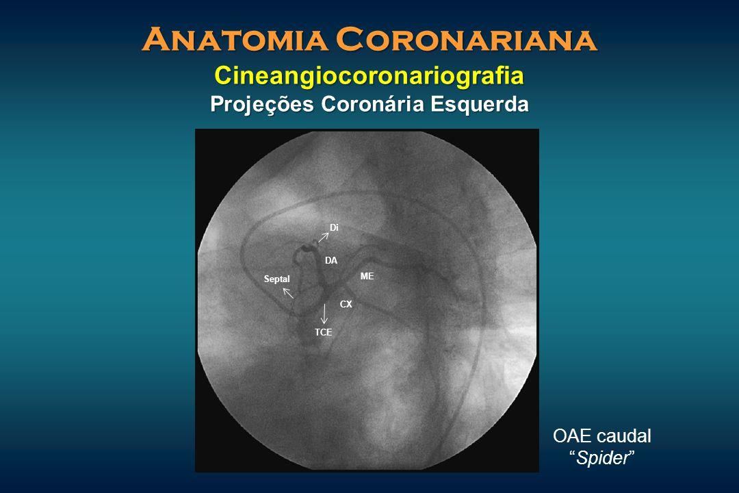 """Anatomia Coronariana Cineangiocoronariografia Projeções Coronária Esquerda OAE caudal """"Spider"""" CX ME DA Septal Di TCE"""