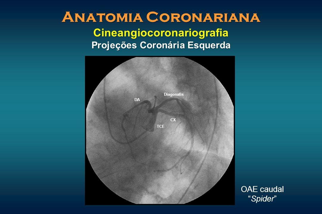 """Anatomia Coronariana Cineangiocoronariografia Projeções Coronária Esquerda OAE caudal """"Spider"""" TCE CX DA Diagonalis"""