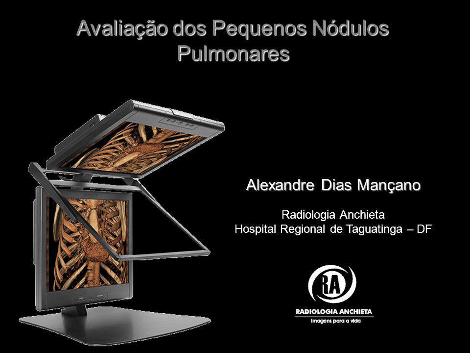 Alexandre Dias Mançano Radiologia Anchieta Hospital Regional de Taguatinga – DF Avaliação dos Pequenos Nódulos Pulmonares