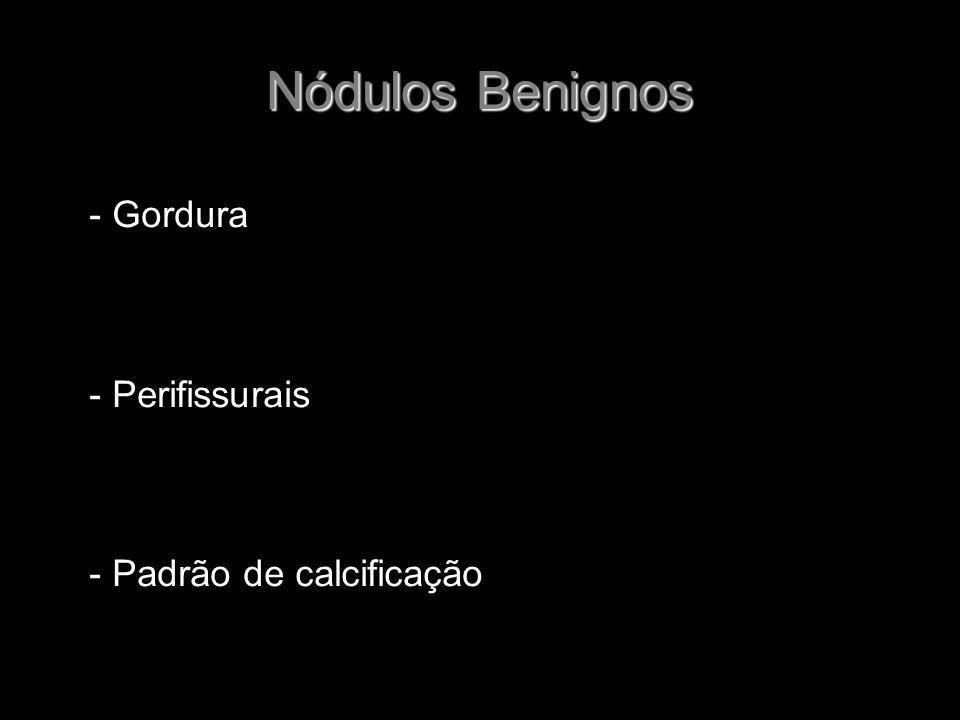 Nódulos Benignos - Gordura - Perifissurais - Padrão de calcificação