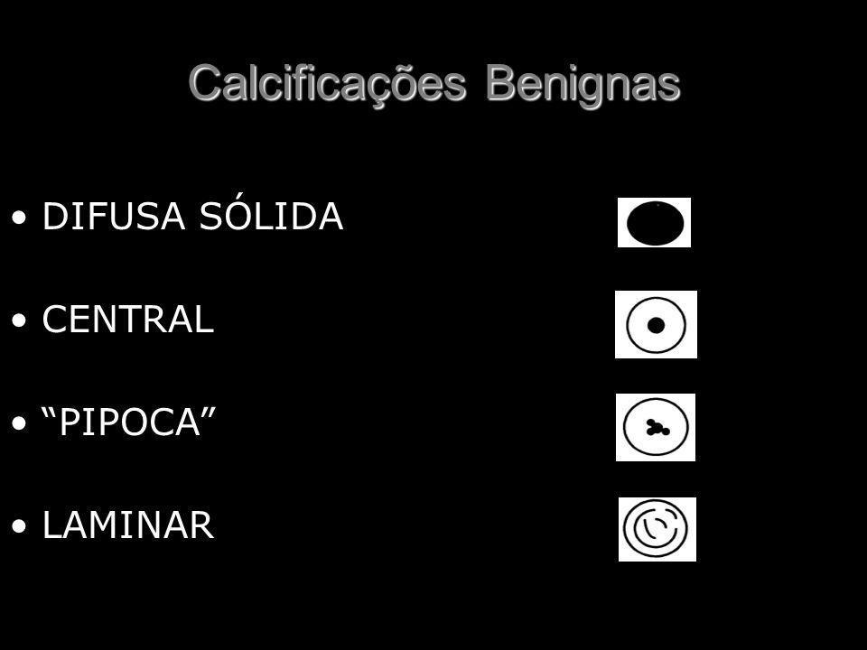 """Calcificações Benignas DIFUSA SÓLIDA CENTRAL """"PIPOCA"""" LAMINAR"""