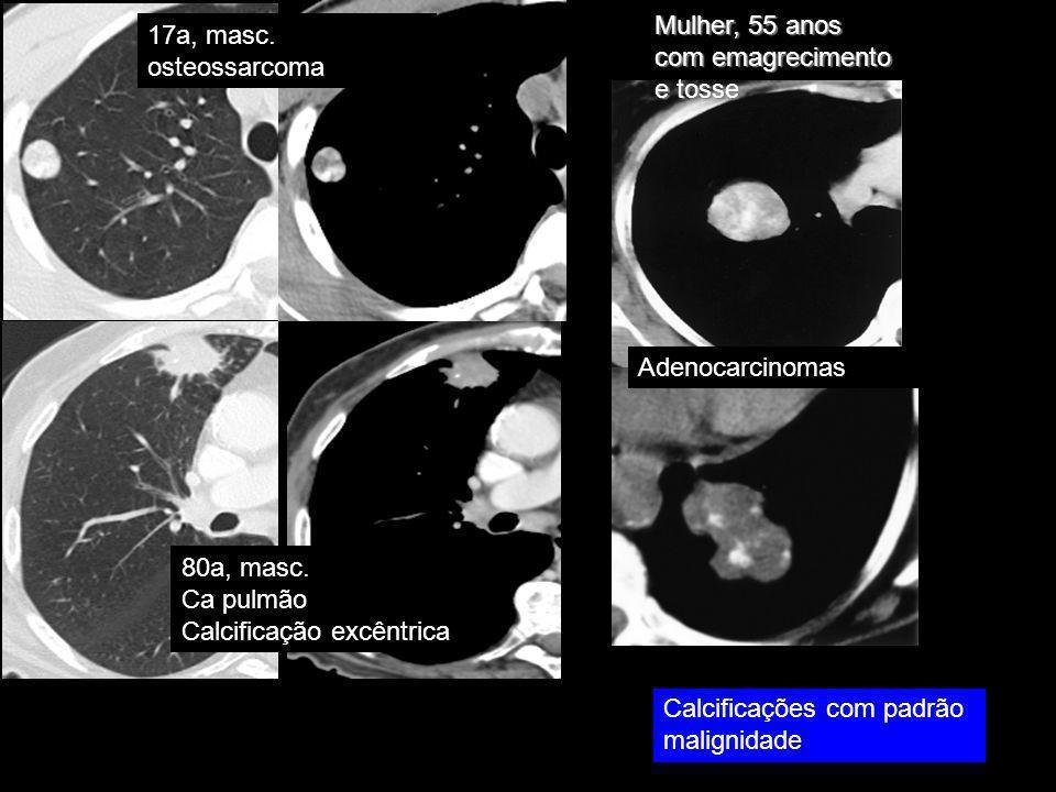 17a, masc. osteossarcoma 80a, masc. Ca pulmão Calcificação excêntrica Mulher, 55 anos com emagrecimento e tosse Calcificações com padrão malignidade A