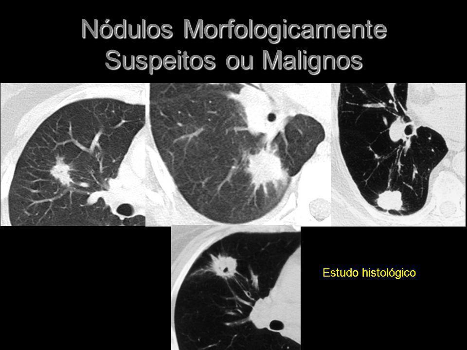 Nódulos Morfologicamente Suspeitos ou Malignos Estudo histológico