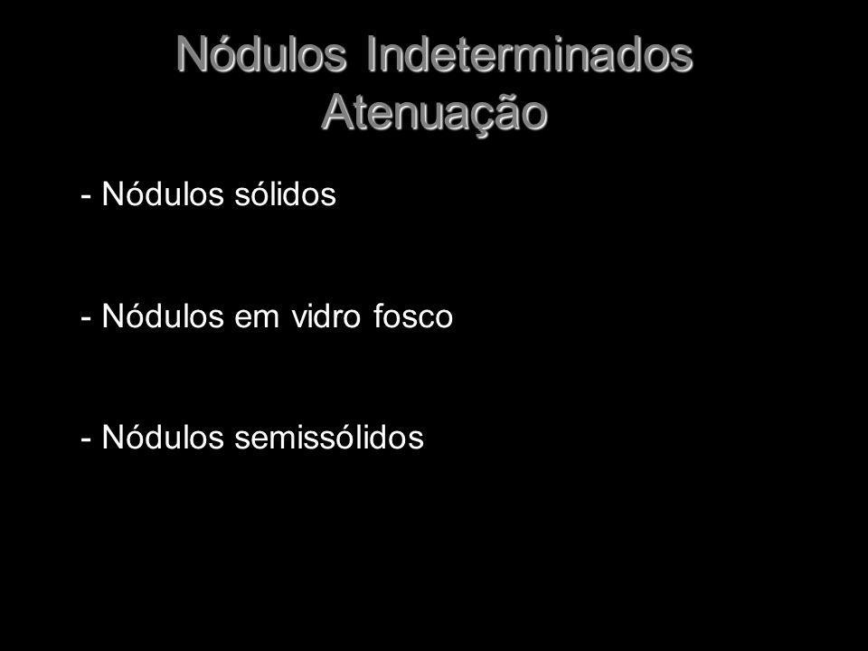 Nódulos Indeterminados Atenuação - Nódulos sólidos - Nódulos em vidro fosco - Nódulos semissólidos