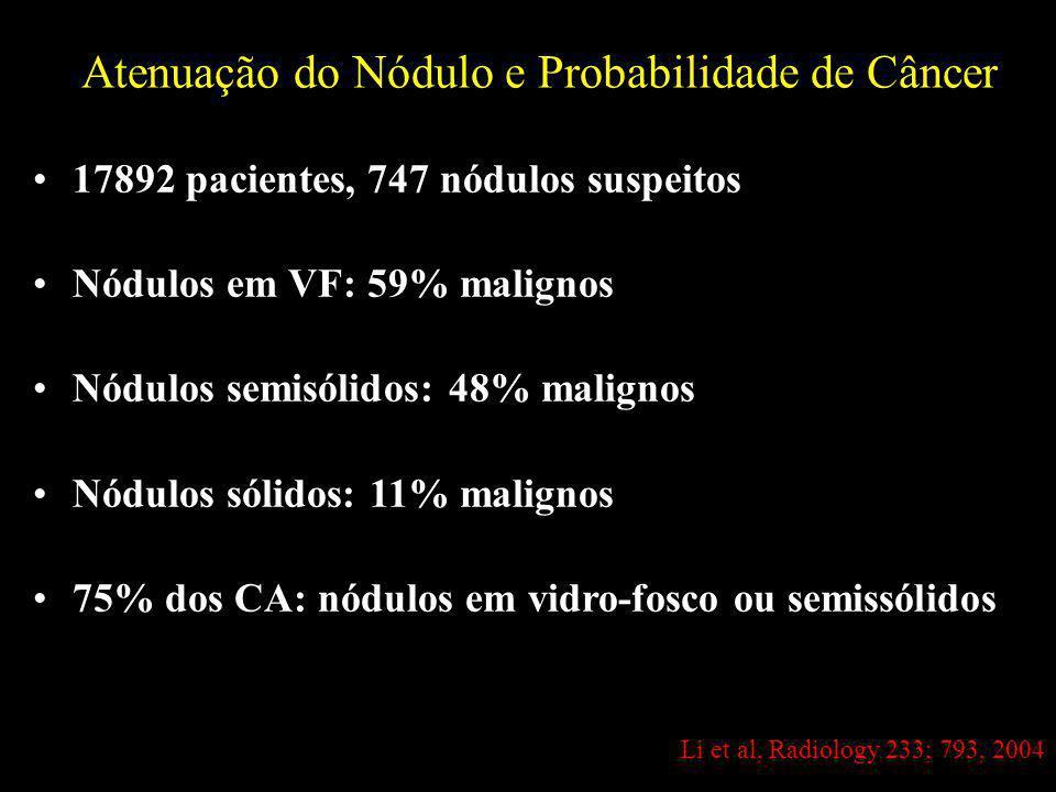17892 pacientes, 747 nódulos suspeitos Nódulos em VF: 59% malignos Nódulos semisólidos: 48% malignos Nódulos sólidos: 11% malignos 75% dos CA: nódulos em vidro-fosco ou semissólidos Atenuação do Nódulo e Probabilidade de Câncer Li et al, Radiology 233; 793, 2004
