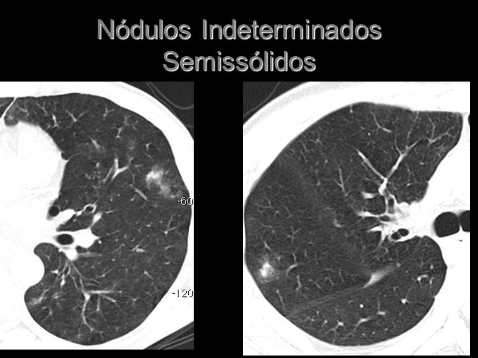 Nódulos Indeterminados Semissólidos