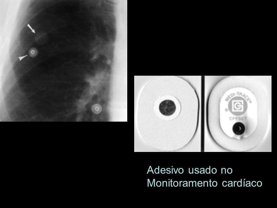 Adesivo usado no Monitoramento cardíaco