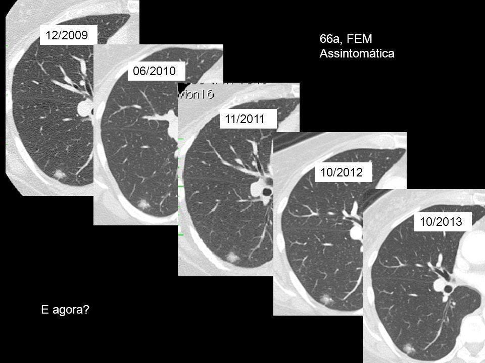 12/2009 06/2010 11/2011 10/2012 10/2013 66a, FEM Assintomática E agora?