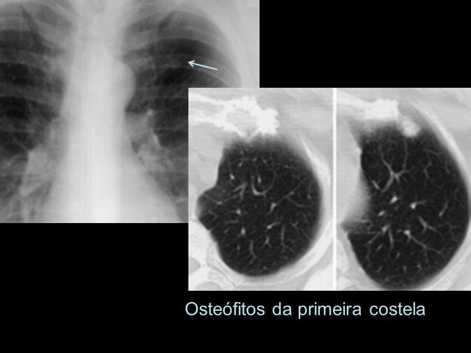 Osteófitos da primeira costela